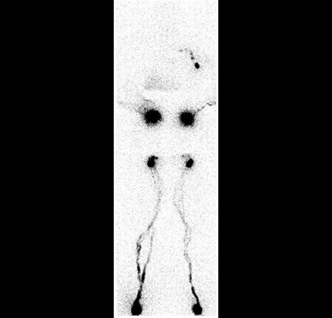 Nuclear Medicine Lymphoscintigraphy