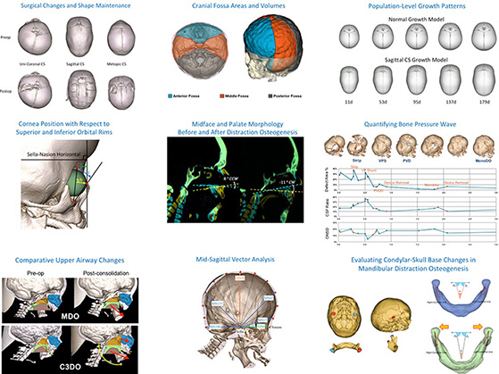 Craniofacial-Image-Analysis-Laboratory 2